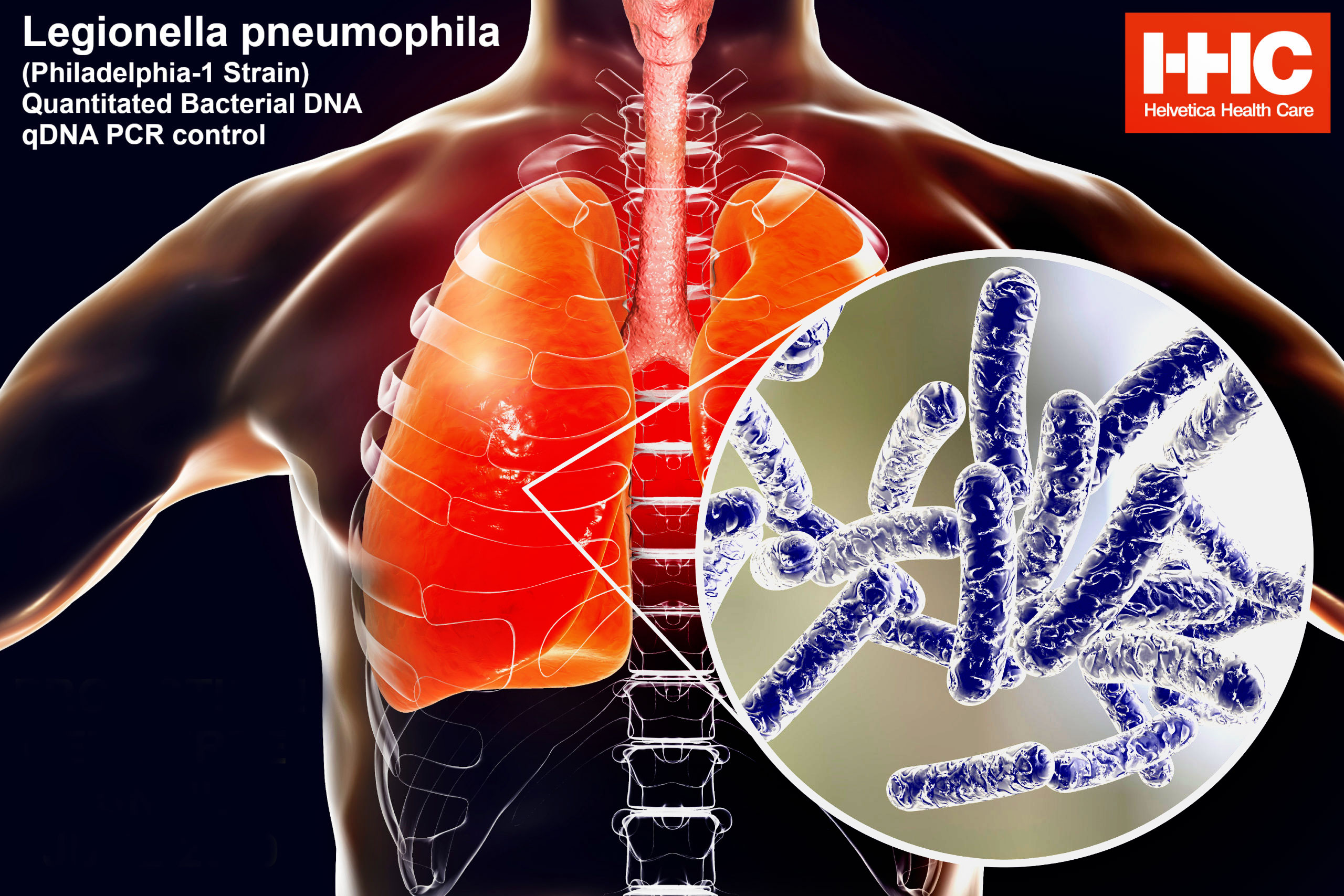 Legionella pneumophila shape and lives in the lungs